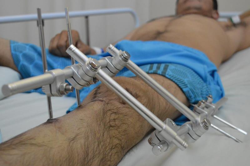 Paciente internado no Hospital Metropolitano.