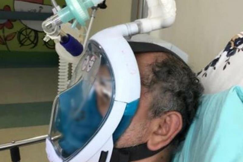Equipamentos ajudam a recuperar a função pulmonar dos pacientes, reduzindo a necessidade de ventilação mecânica invasiva