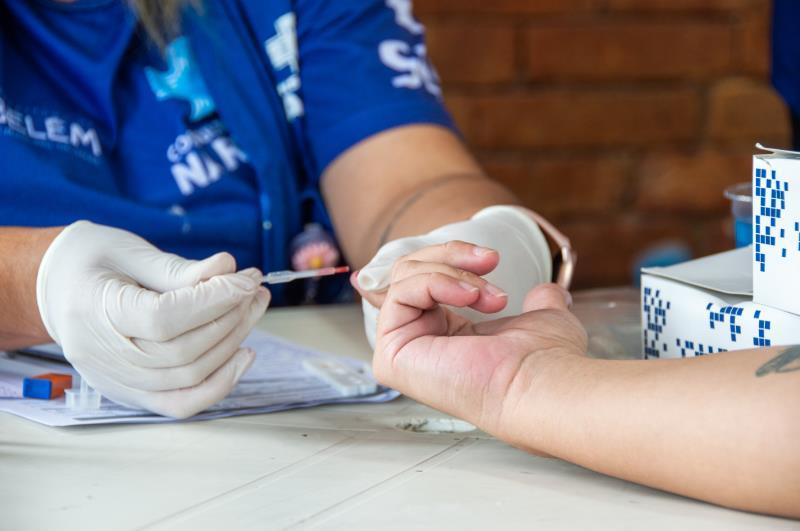 A Referência Técnica em IST/AIDS e Hepatites Virais, da Sesma, realizou serviços de testagem de HIV, sífilis e hepatite B e C